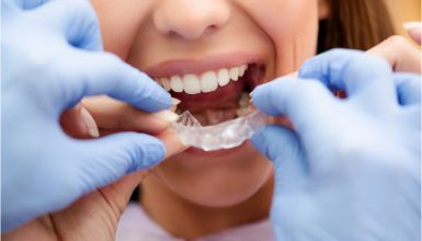 How Can Insurance Help you Save Money On your Invisible Braces?